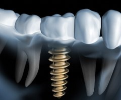 how dental implants work in Owasso.