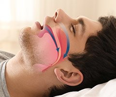 man sleeping with airway arrows