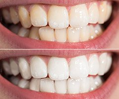 smile before whitening and after whitening