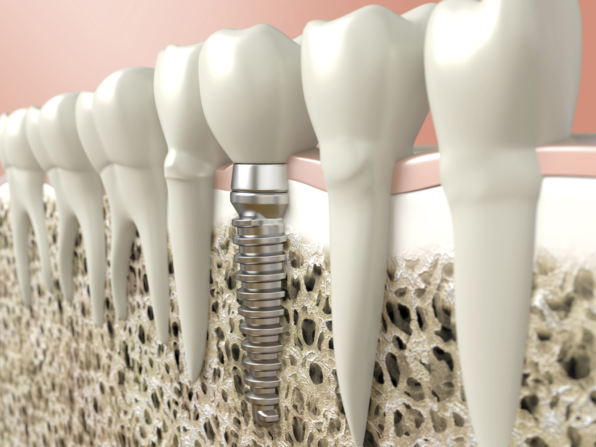 For A Dental Implant Owasso Ok Residents Turn To Drake Voto Jason D Voto Dds Family And Cosmetic Family Dentistry