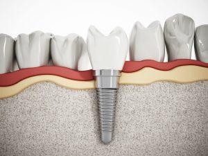 dental implant fixture fused in bone