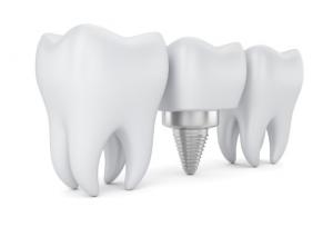 dental implant for a molar